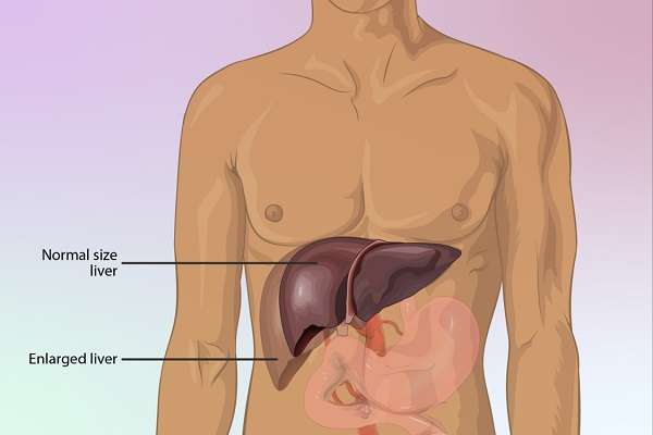 Read more about the article 10 Warning Signs Your Liver Is In Trouble